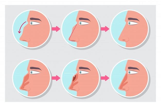 انواع عمل بینی